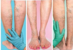 Odyssey-Vein-Clinic Varicose Vein Treatment Adelaide